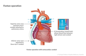 Fontan procedure to correct Left hypoplastic heart syndrome. Image courtesy of rch.org