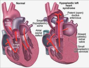 Hypoplastic Left Heart Syndrome. Image courtesy of mykentuckyheart.com